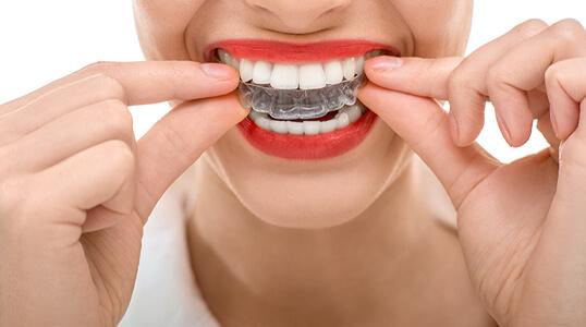 Orthodontie-Alfortville-soins